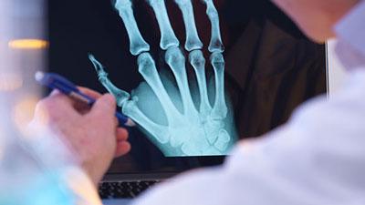 آخرین رتبه و تراز قبولی رشته رادیولوژی دانشگاه آزاد 98